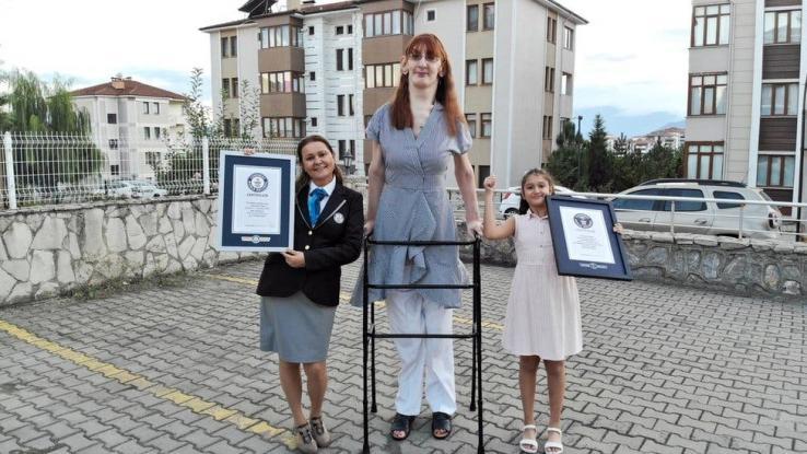 Síndrome de Weaver, la condición de la mujer más alta del mundo